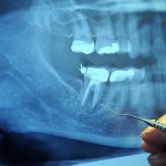 The High Cost of Getting My Son's Wisdom Teeth Removed