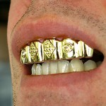 tooth grill