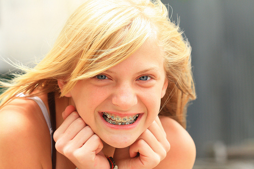 Why I'm Making My Daughter Pay for Her Dental Braces